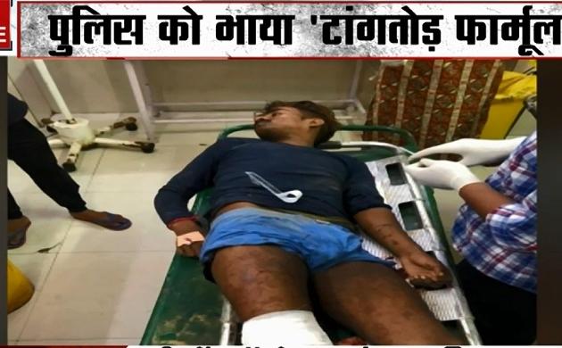 Khalnayak: दिल्ली पुलिस का 'ऑपरेशन लंगड़ा', अपराधी के पैरों में गोली मार जुर्म रोकने का नया फॉर्मुला