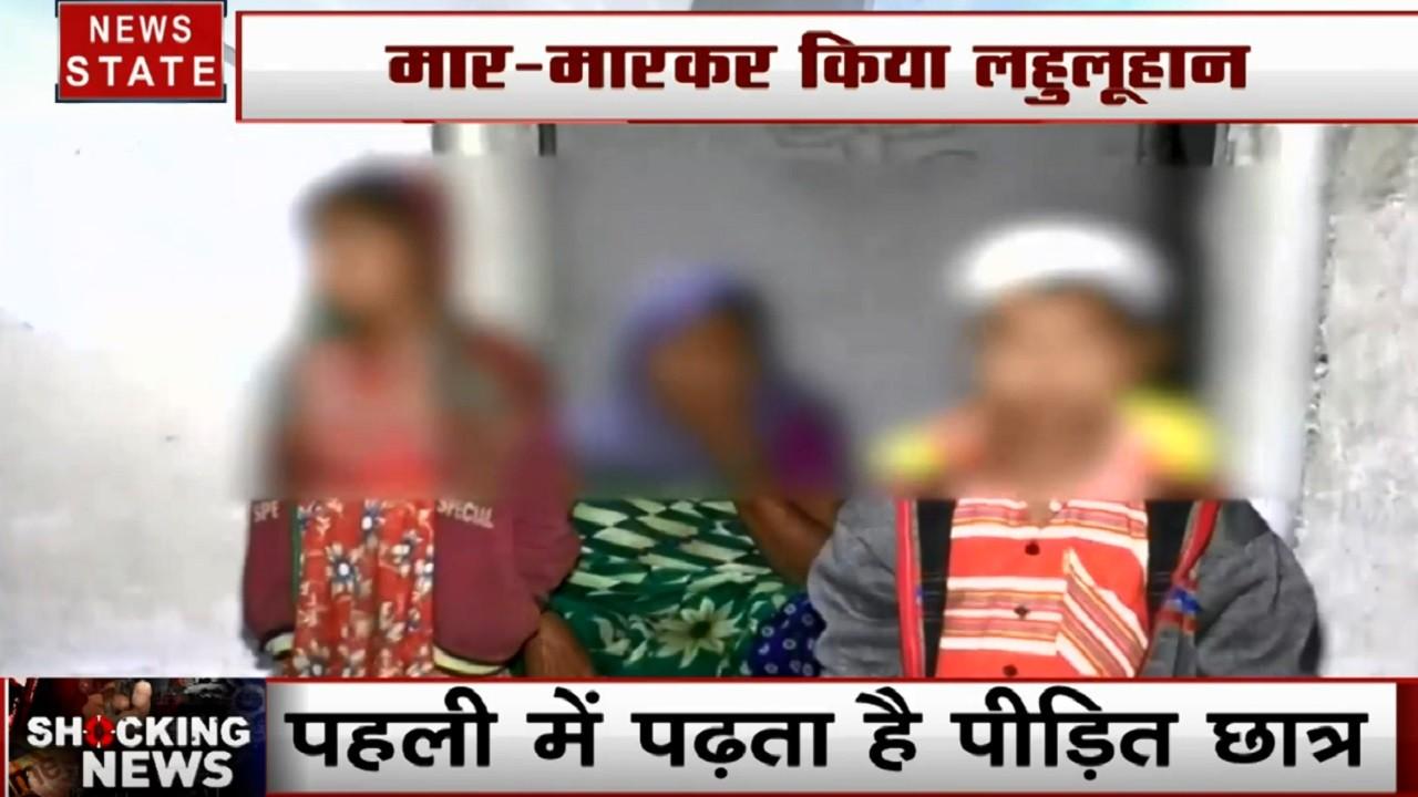 Chhattisgarh: 1 साल के मासूम का टीचर ने फोड़ा सिर